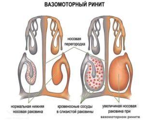 вазимоторный ринит схематично
